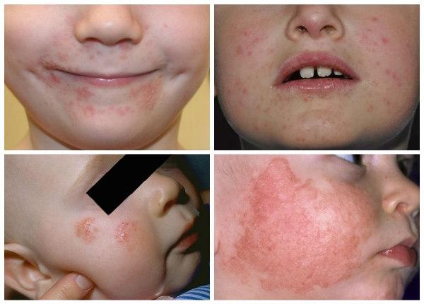 dermatit-u-detej