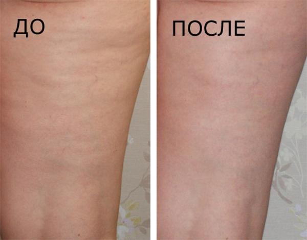 medovyj-massazh-rezultaty (2)
