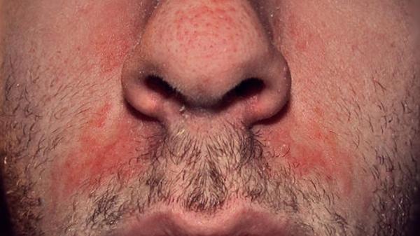 seborejnyj-dermatit