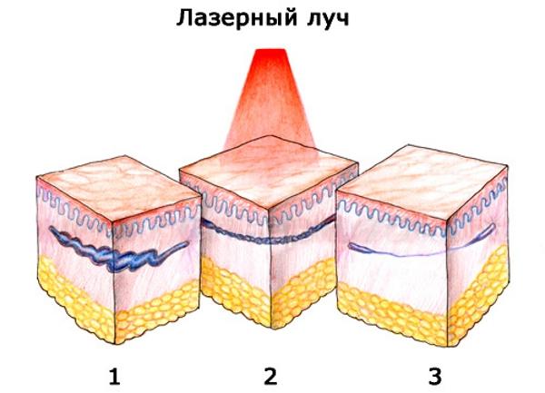 lazernaya-koagulyaciya