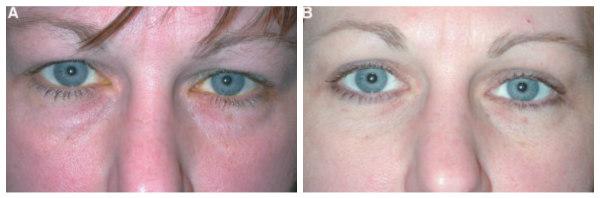 transkonyunktivalnaya-blefaroplastika-rezultaty