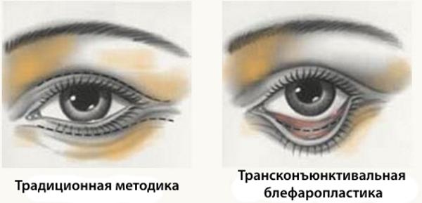 transkonyunktivalnaya-blefaroplastika