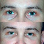 Липофилинг век (глаз)