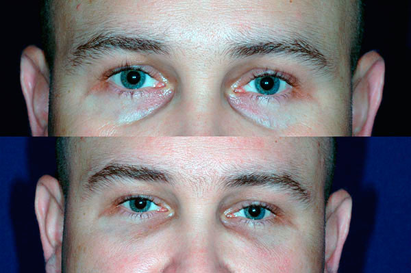 Липофилинг глаз