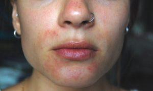 kontaktnyj-dermatit