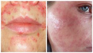 simptomy-dermatita