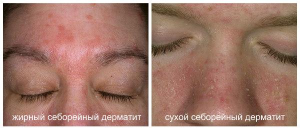 vidi-seborejnogo-dermatita