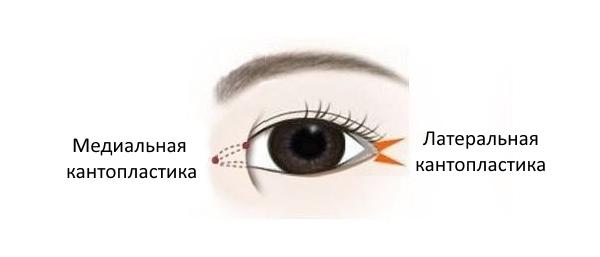 vidy-kantoplastiki (1)